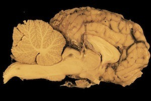 Good study skills change the structure of your brain = photo of brain